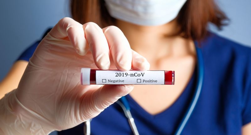 coronavirus, blood, test, tube, 2019-ncov, analysis, bacterial, china, chinese, clinic, container, corona, cov, death, diagnostic, disease, doctor, epidemic, equipment, female, flu, hand, health, holding, hospital, infection, lab, laboratory, mask, medical, medicine, mers, microbe, microbiology, ncov, negative, novel, pandemic, patient, pneumonia, positive, research, respiratory, scientist, specimen, vaccine, virology, virus, woman, wuhan, coronavirus, blood, test, tube, 2019-ncov, analysis, bacterial, china, chinese, clinic, container, corona, cov, death, diagnostic, disease, doctor, epidemic, equipment, female, flu, hand, health, holding, hospital, infection, lab, laboratory, mask, medical, medicine, mers, microbe, microbiology, ncov, negative, novel, pandemic, patient, pneumonia, positive, research, respiratory, scientist, specimen, vaccine, virology, virus, woman, wuhan